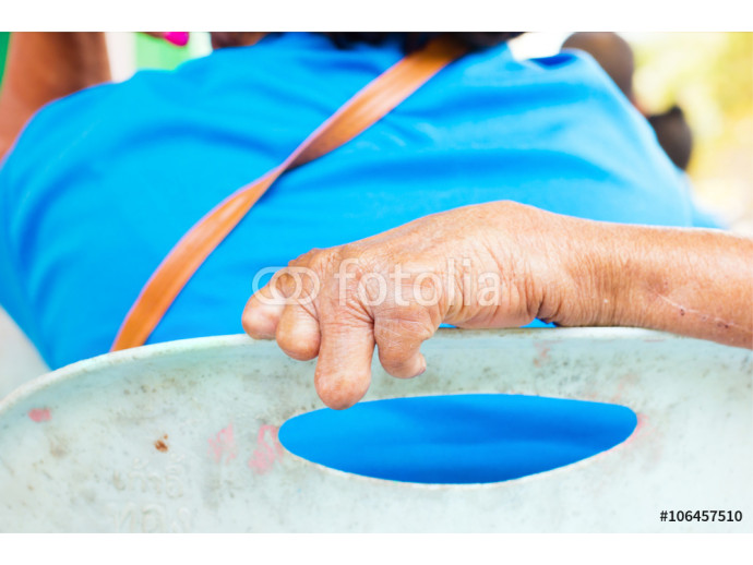 closeup hand of old man suffering from leprosy on the backrest of the plastic chair 64238