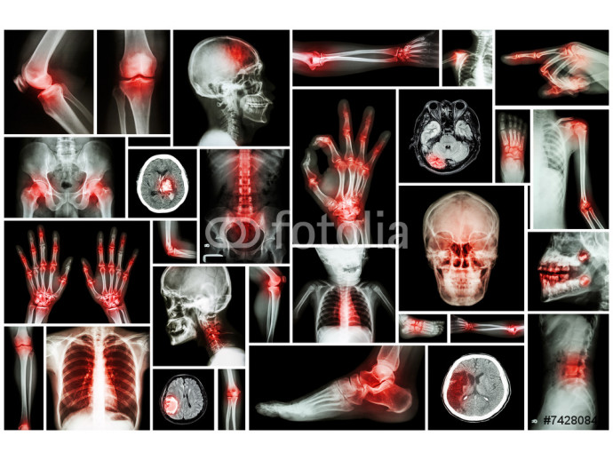 Vliestapete X-ray multiple part of human with multiple disease 64238