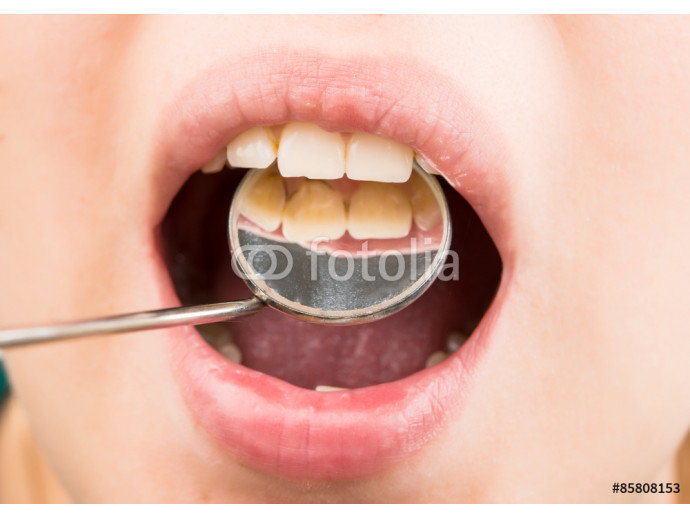 dental treatment at the dentist 64238