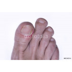 Inflammation of the nail of the big toe 64238