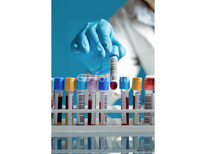 a hand drawing a blood sample tube 64238