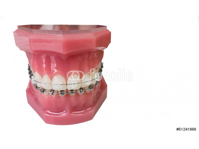 Dental braces model 64238