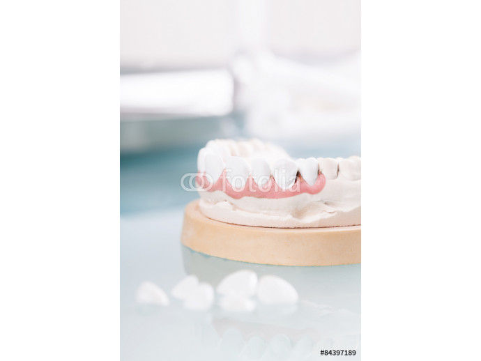cast tooth 64238