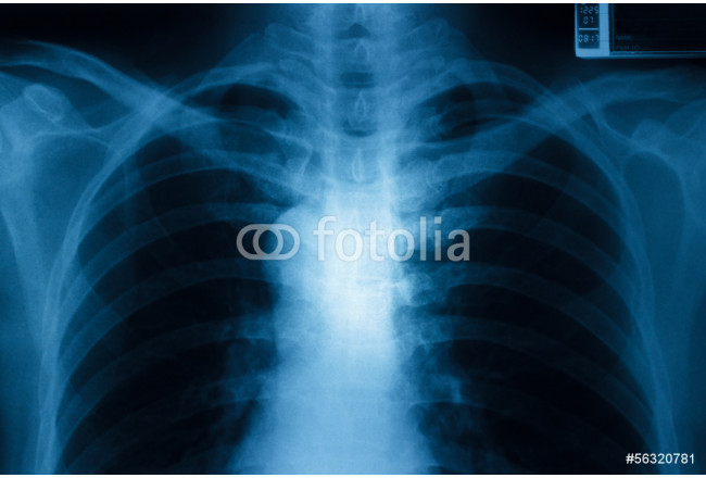 Chest x-ray 64239