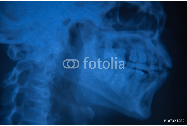 View of  film x-ray skull of human 64239