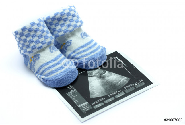 Baby shoes and Ultrasound  images 64239