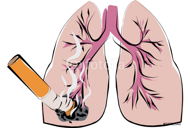 lung cancer 64239