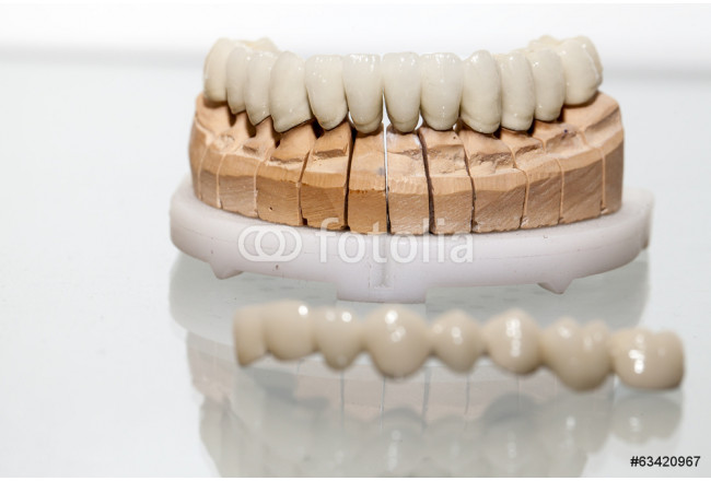 Zirconium Porcelain Tooth plate in Dentist Store 64239