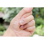 Fungus Infection on Nails Hand, Finger with onychomycosis, A toenail fungus. - soft focus 64239