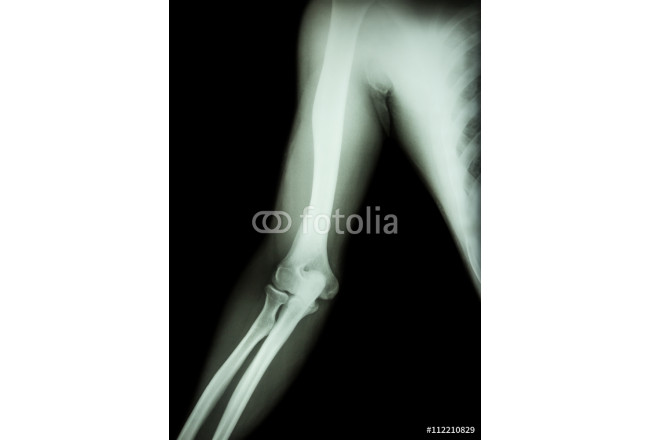 film x-ray of normal arm , elbow and forearm ( black background ) 64239